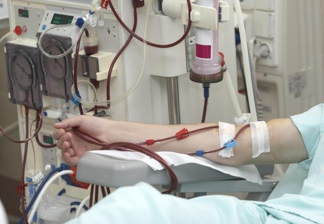 За три месеци шест пациенти добиле бубрег од починат дарител