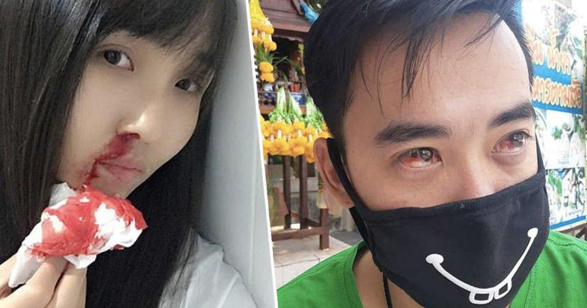 Жителите на Бангкок крварат поради загадениот воздух – Скопје не е далеку