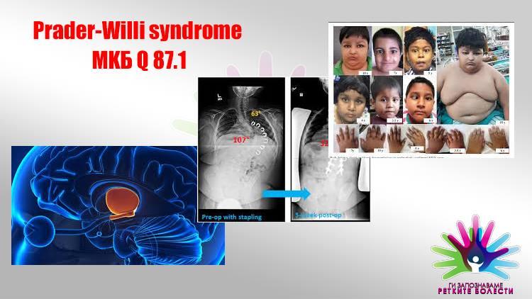 Што е Прадер-Вили синдром?