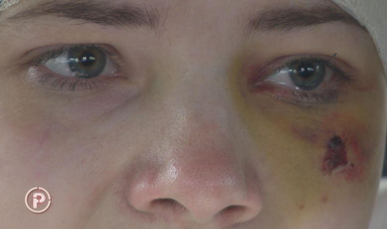 Загрепчанка претепана од сопругот теолог: Ме тепаше пред децата