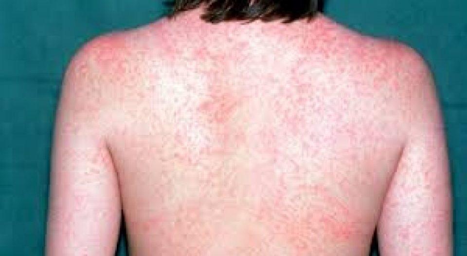 Епидемија на мали сипаници, четворица се во критична состојба