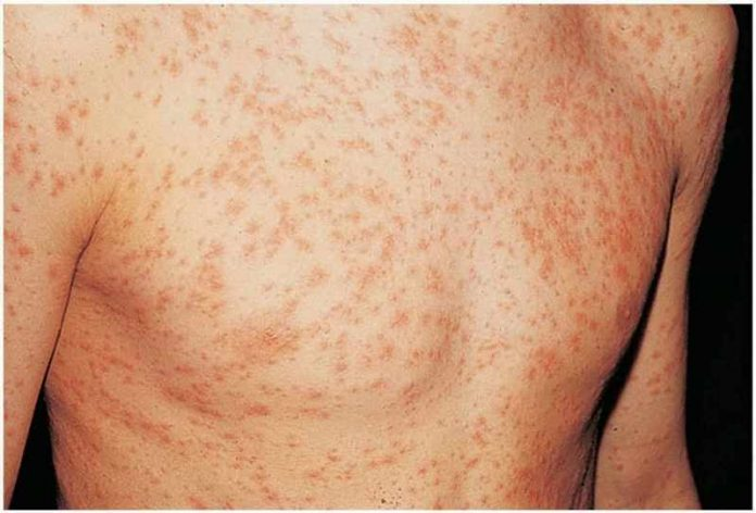 Изминатата недела најмногу заболени од морбили од почетокот на епидемијата