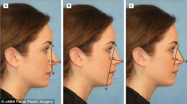 Што значи успешна операција на нос – на Холивуд му успеале само три