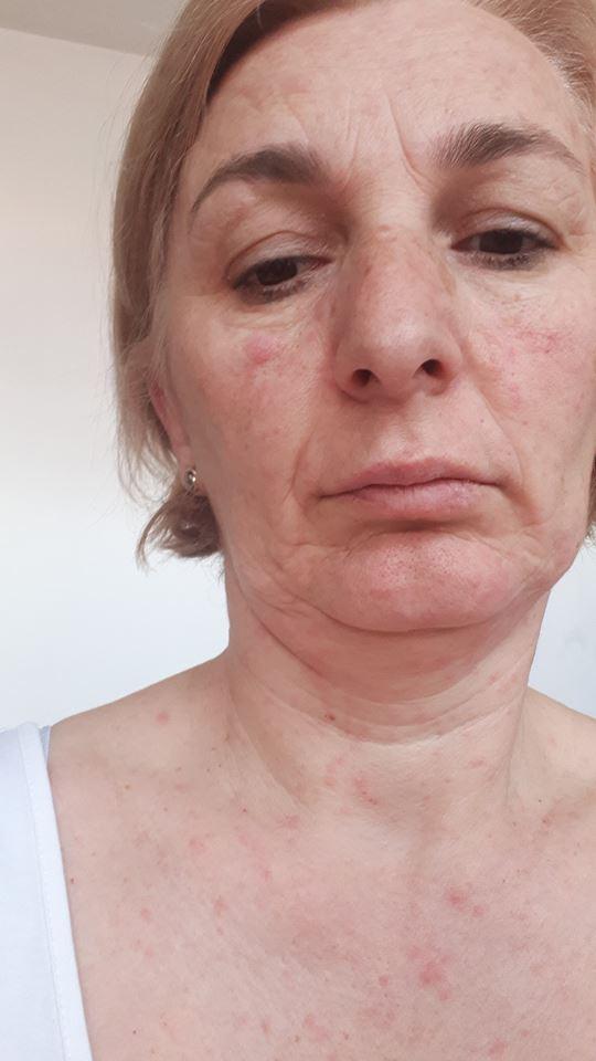 Медицинска сестра од Струга се зарази од морбили од невакцинирани деца