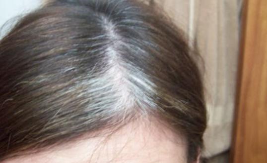 Цел живот сте во заблуда: Косата не белее од старост, туку од оваа причина