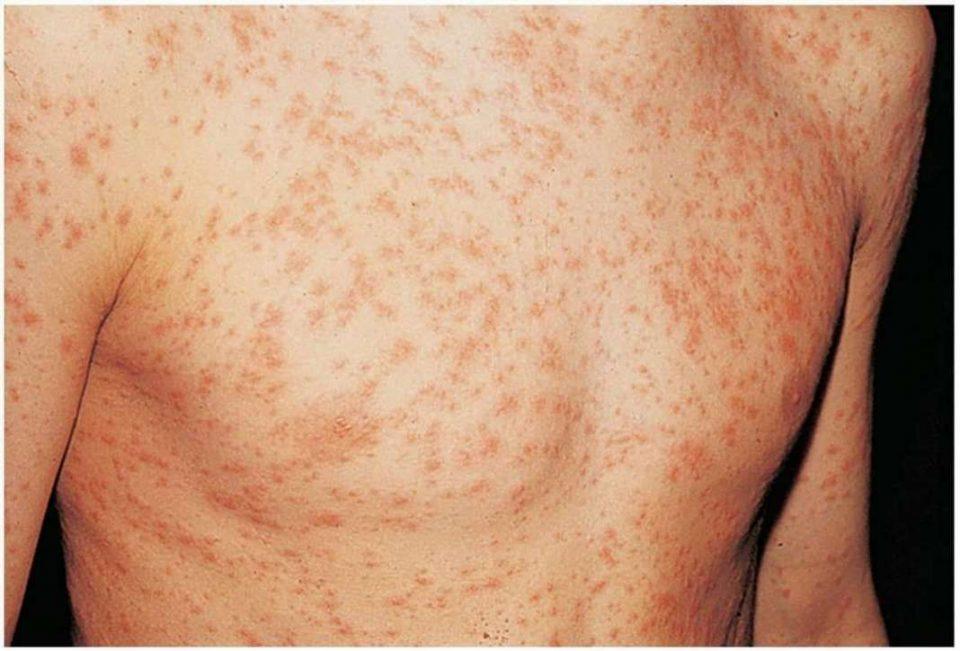 Осум нови заразени од морбили примени вчера на Инфективна, меѓу нив и 4 месечно бебе