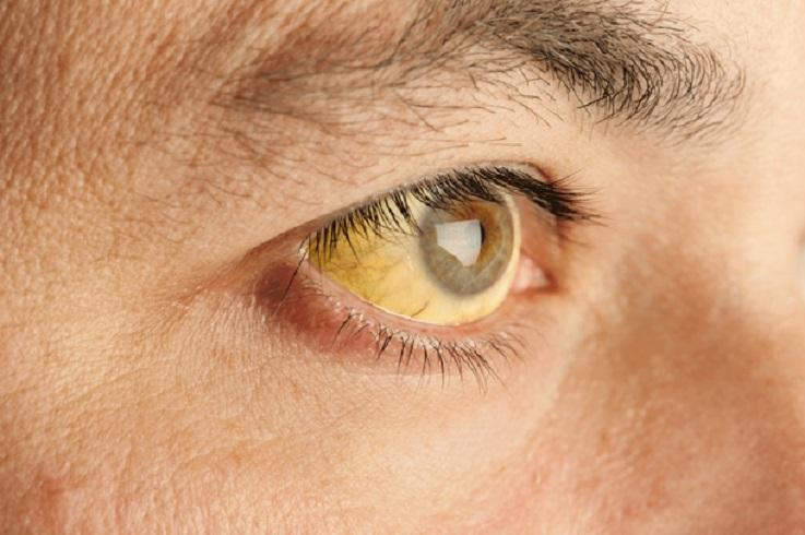 Епидемија на заразна жолтица во Кочани