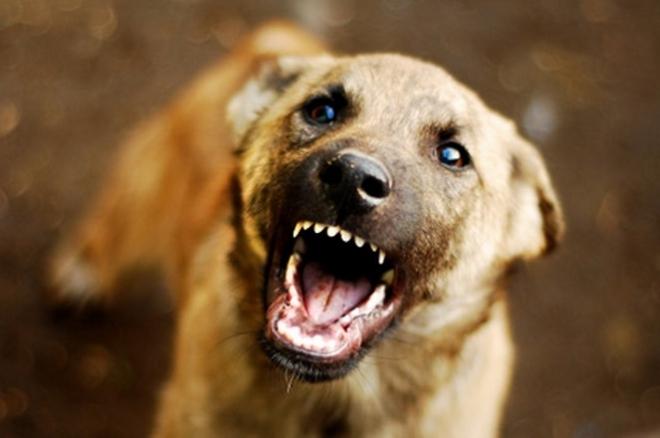 Петгодишно дете од Тетово го искасало куче по целото тело, во болницата немало вакцина против беснило, го пратиле во Скопје