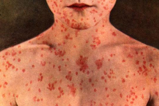 СЗО предупредува на најлоша епидемија на сипаници во последните 13 години