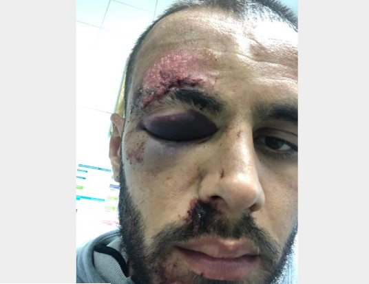 Помодрено око, крв, исекотини: Македонскиот фудбалер Ејупи со сериозни повреди по нападот