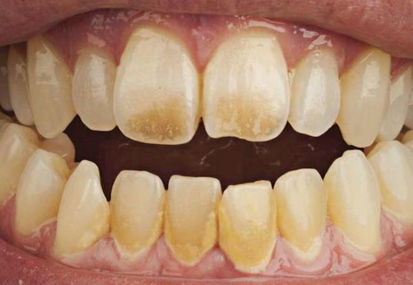Храната од која пожолтуваат забите