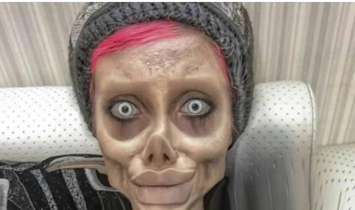 Си го уништила лицето: Сакала да личи на Анџелина Џоли, но сега личи на чудовиште