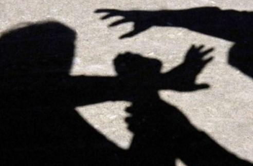 Жена нападната и ограбена во зграда во Аеродром