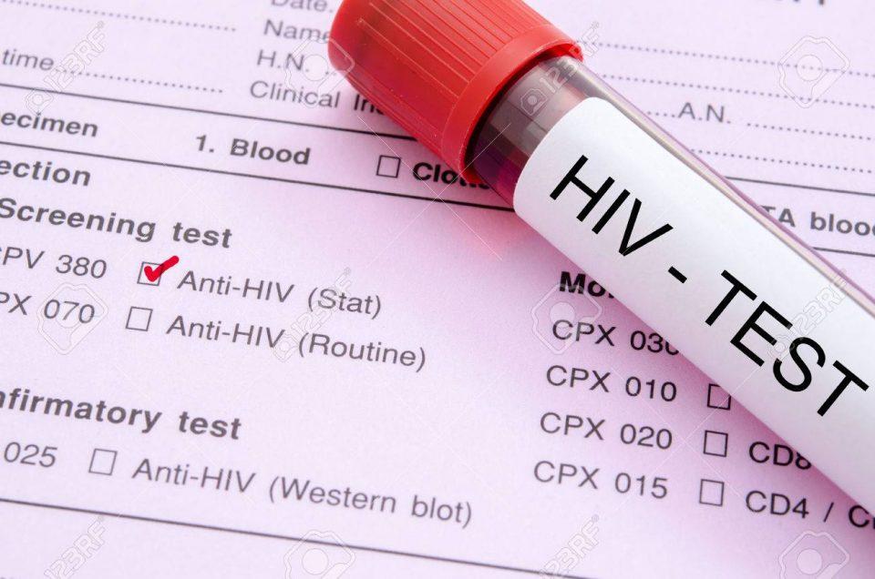За една година во Македнија се регистирани 29 нови ХИВ-позитивни, шестмина починале