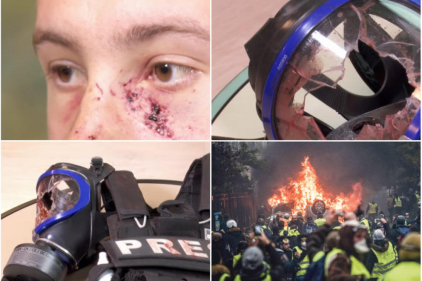Француската полиција со воено оружје на жолтите елеци: На новинар му експлодирала граната во лице