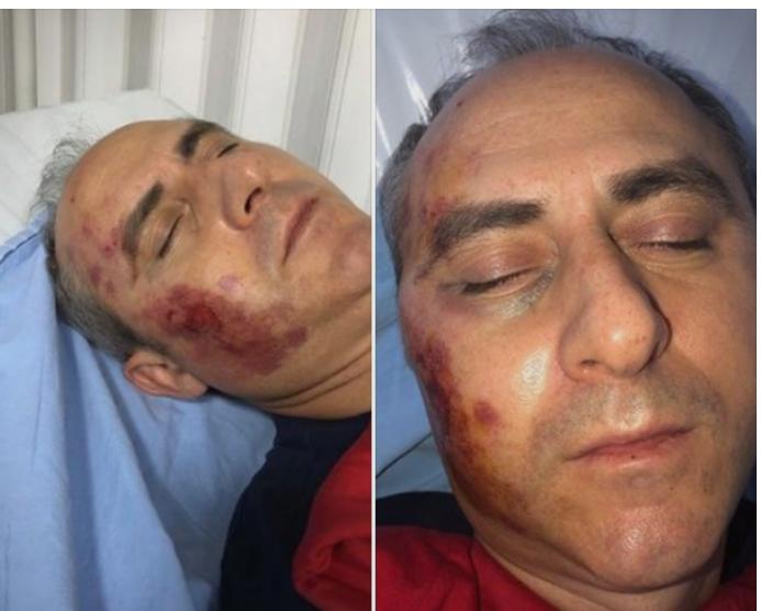 Трајковски на неврохирургија, обвинителот бара да се раздвои постапката