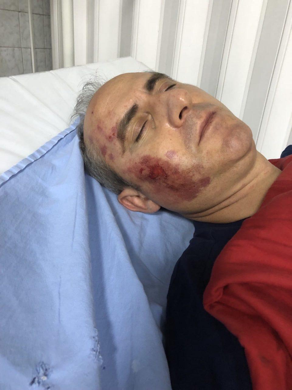 МВР го потврди нападот врз Тони Трајковски