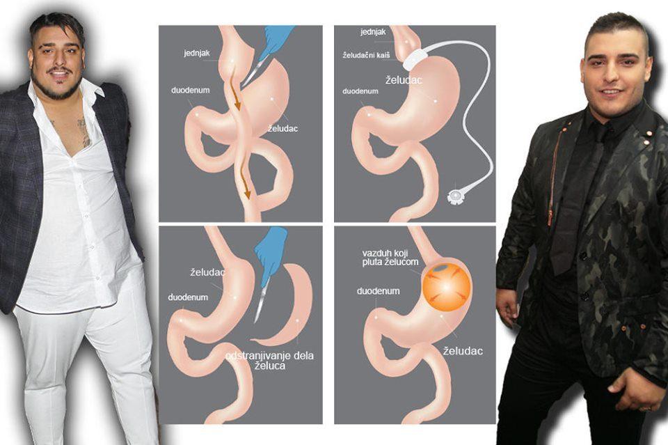 Лазиќ со операција го смали желудникот