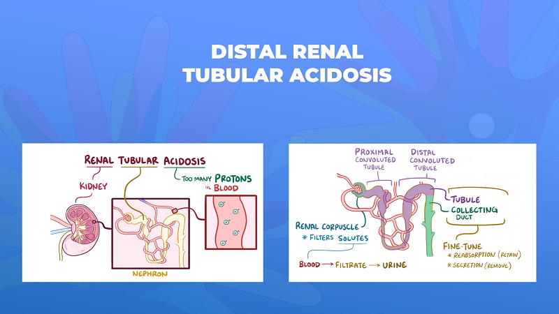 Ги запознаваме ретките болести: Дистална бубрежна тубуларна ацидоза