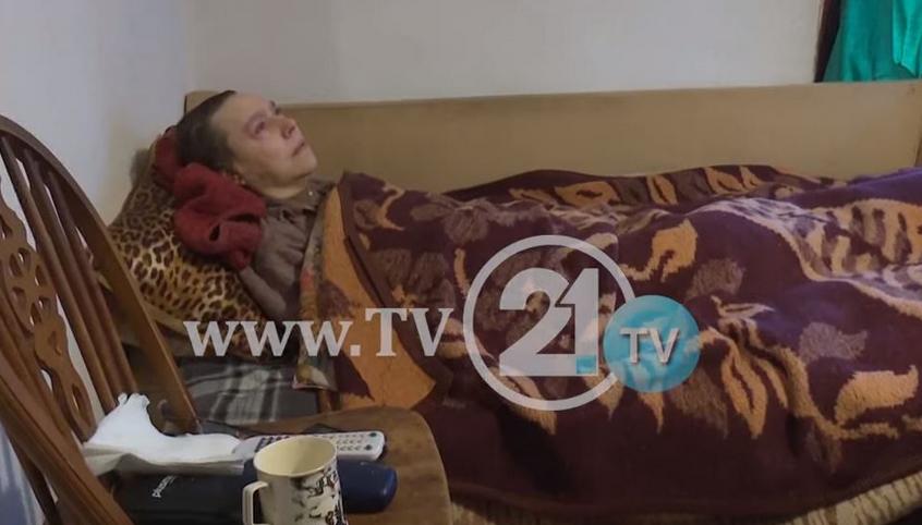 Да помогнеме: Тешко болна и сама – Лидија од Куманово преживува со четири илјади денари