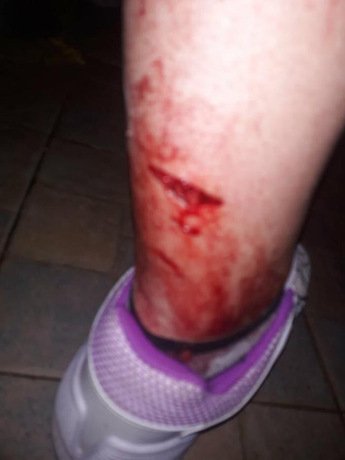 Нов напад од улични кучиња, скопјанка завршила на клинички