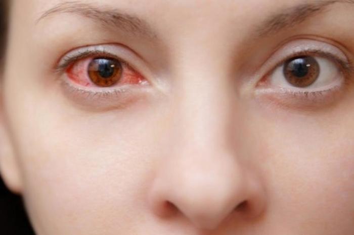 Откриен нов симптом на зараза со коронавирус