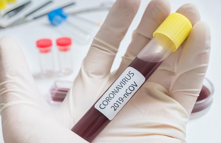 Три нови случаи со Ковид-19 вчера во Косово, вкупно 91 заразен