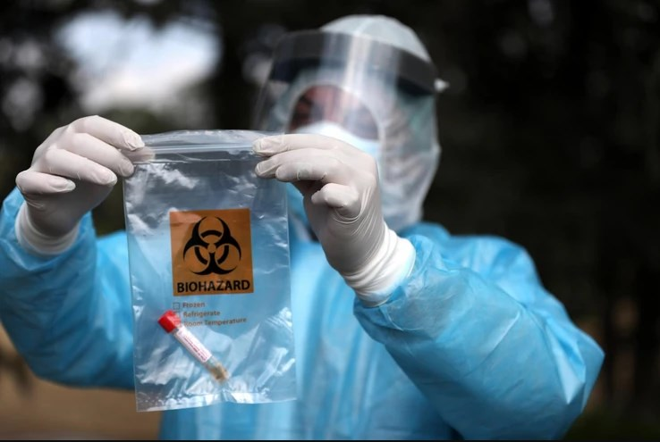 Коронавирусот предизвикува невролошки оштетувања, а кај некои пациенти и мозочен удар: Предупредување на грчки инфектолог