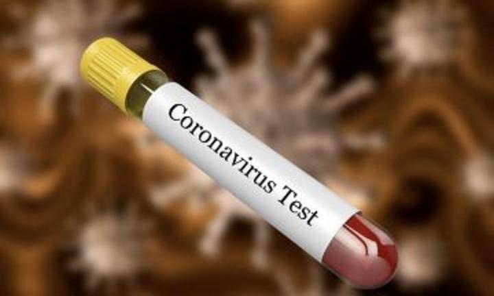 Николов: Власта го намалува бројот на тестови, а со тоа и бројот на ново дијагностицирани