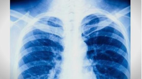 Како да имам срчи или стакло во белите дробови, велат пациентите со Ковид-19