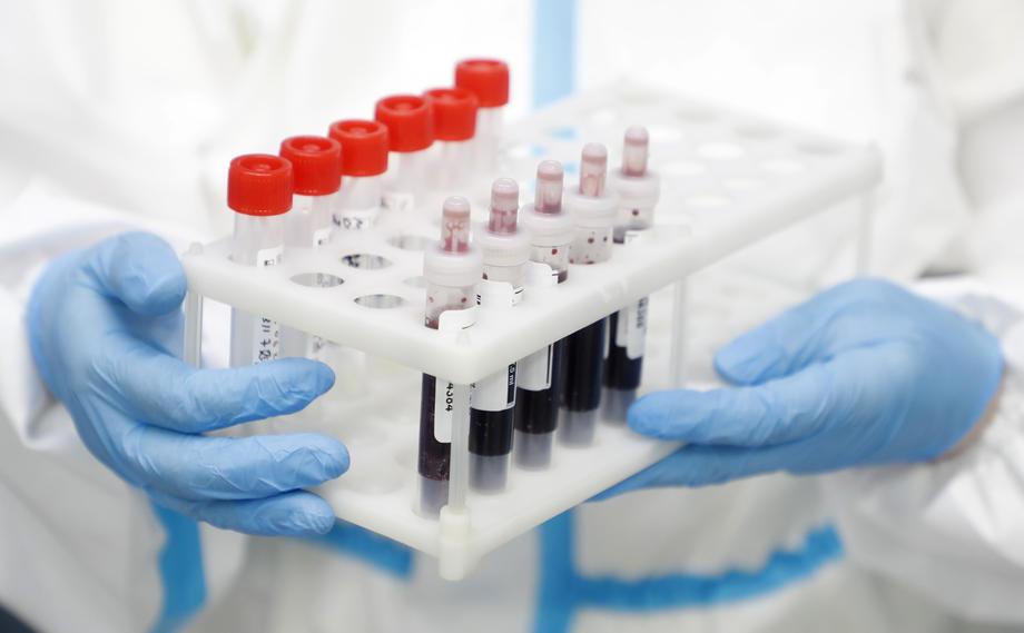 Можно е да нема траен имунитет на ковид-19, покажа едно истражување