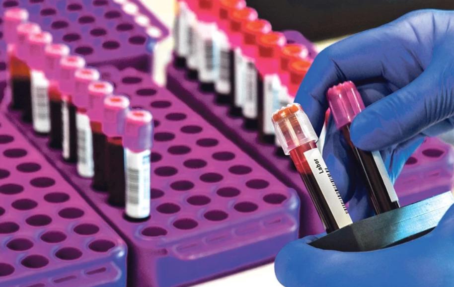 Над 37 милиони граѓани во светот досега се заразиле со Ковид-19