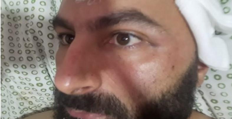 Делегацијата на ЕУ во земјава бара да се најдат напаѓачите на ЛГБТИ активистот Беким Асани