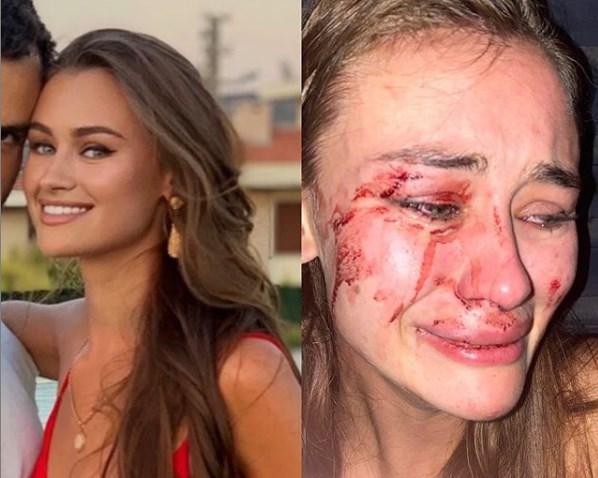 Манекенка претепана на позната турска плажа