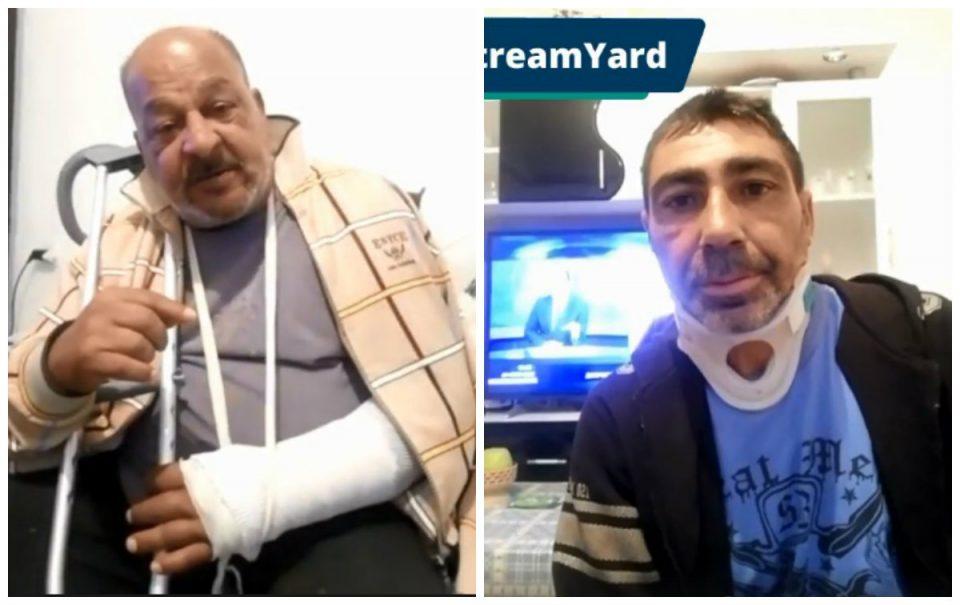 Се огласија претепаните Роми: Бевме тепани и малтретирани, во станица не држеа до пет часот изутрина