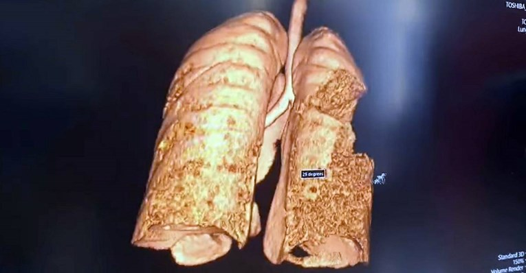 Ново истражување покажува долгорочно оштетување на белите дробови по корона вирусот