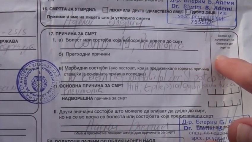Пациентката од Тетово не дочека операција на Неврохирургија, почина од компликации на коронавирусот, кој го доби во болница