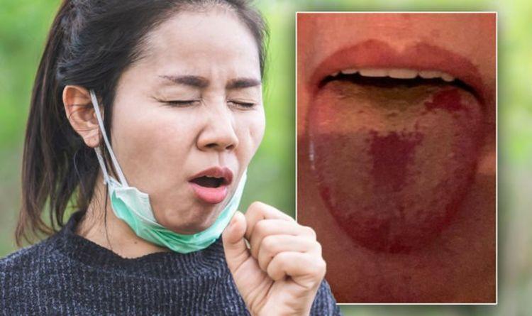 Бразилскиот сој инфицира луѓе со прележан ковид-19