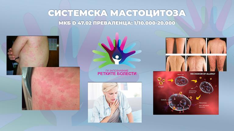 Ги запознаваме ретките болести: Системска мастоцитоза