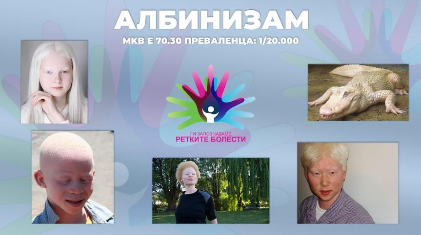 Ги запознаваме ретките болести: Албинизам