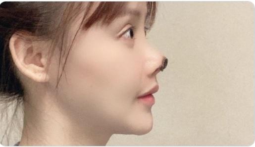 После пластична операција и отпаднал врвот на носот – кинеска актерка поради убавина на раб на самоубиство