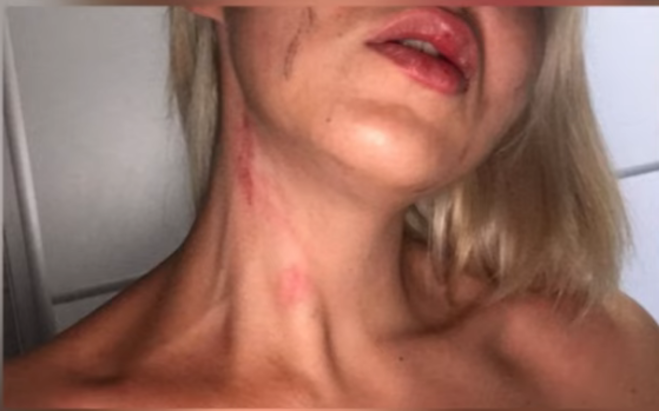 Велешанката Моника Јовановска раскажува како била силувана и брутално претепана: Обвинителство молчи шест месеци