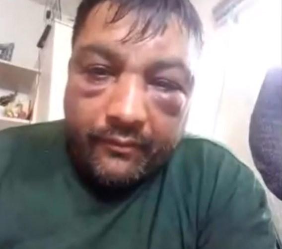 Игор раскажа како беше претепан од силеџиите на Заев: Сакаа да ме прегазат и со возило, полицијата не интервенираше