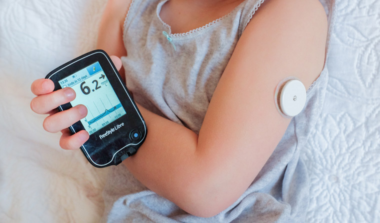Филипче: Набавуваме сензори за мерење дијабет кај деца