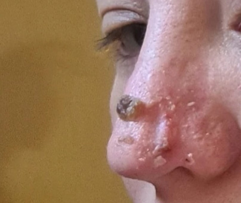 """Платила 950 евра, а носот на крај ѝ излегол вака: Печеше и болеше, """"докторката"""" ми рече да не кукам"""