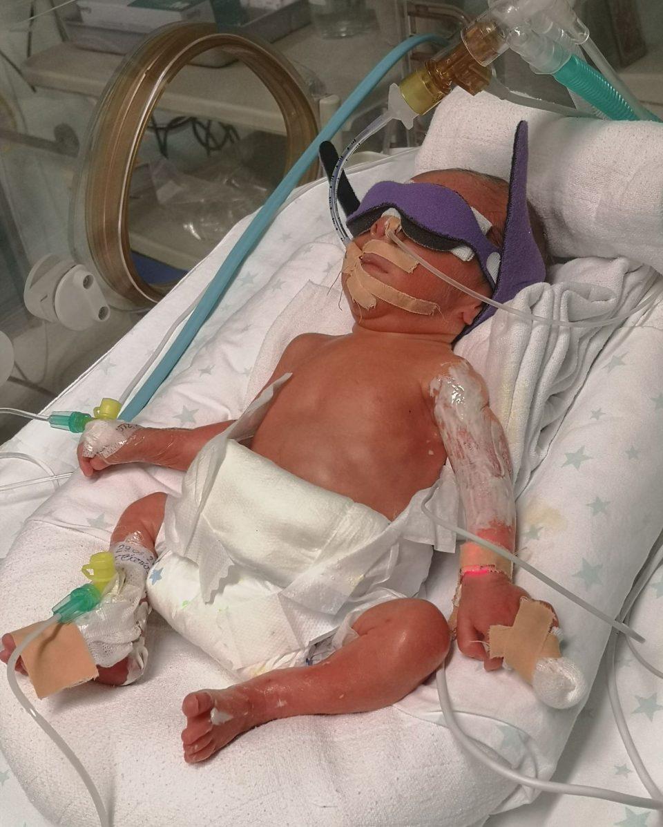 Да бидеме хумани: Поради предвременото раѓање, малиот херој Василиј има потреба од помош