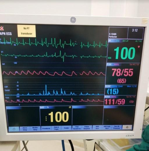 Пацинетот на кој му беше направена трансплантација на срце се чувствува добро