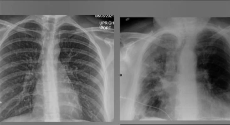 Вака изгледаат белите дробови на пациент кој се заразил со корона по две дози вакцина